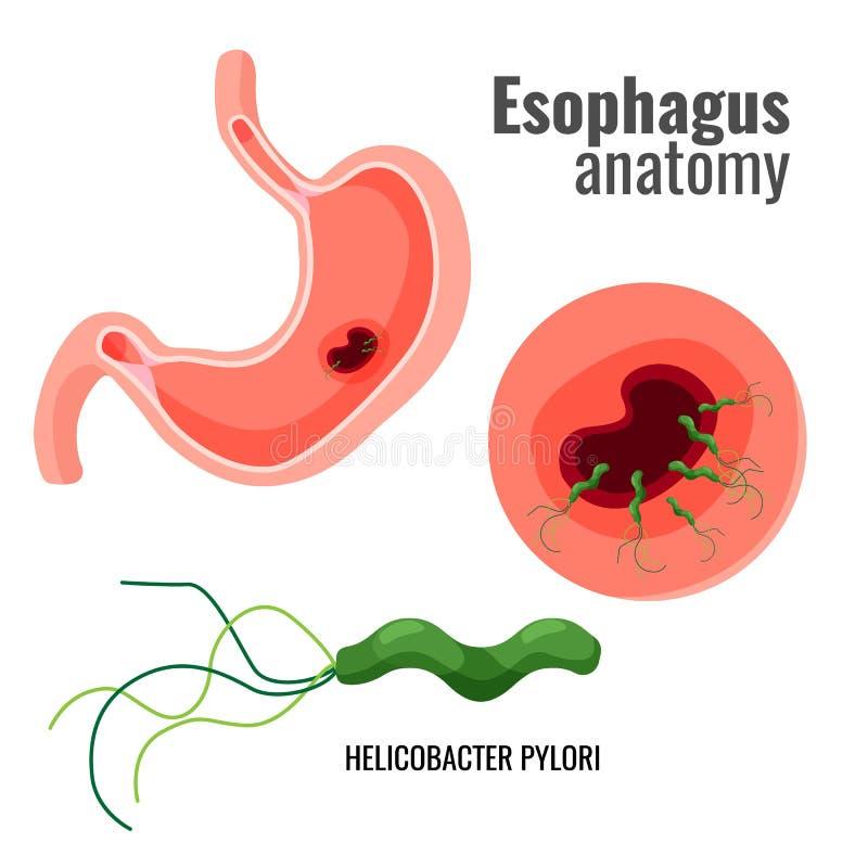 Esophagus helicobacter i anatomii odźwierników promo medyczny plakat ilustracja wektor