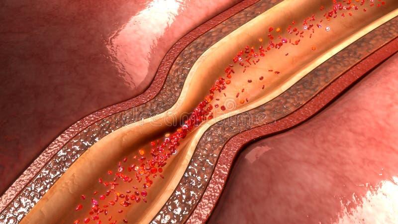 Espasmo de la arteria coronaria libre illustration