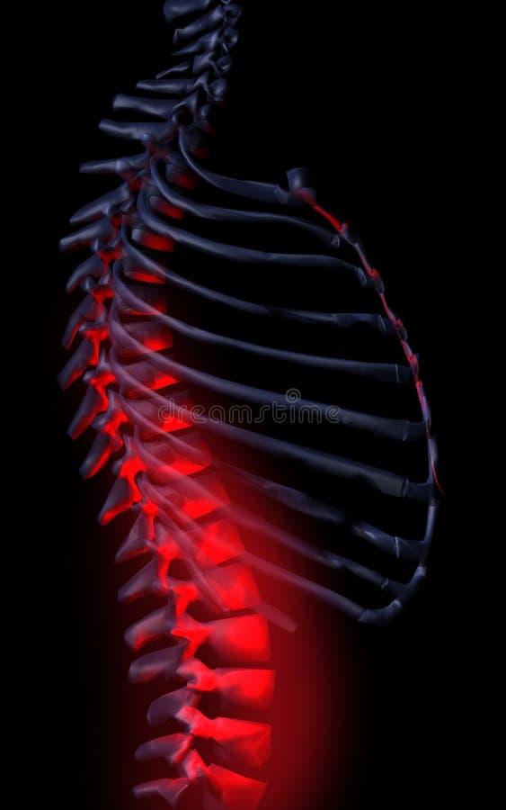 Espina dorsal libre illustration