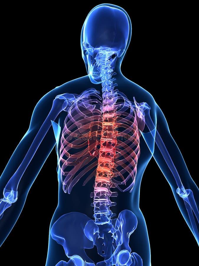 Espina dorsal dolorosa stock de ilustración