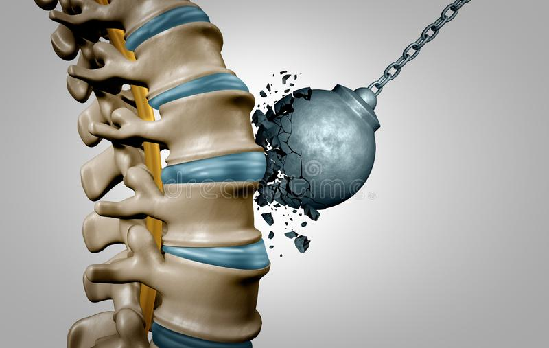 Espina dorsal fuerte libre illustration