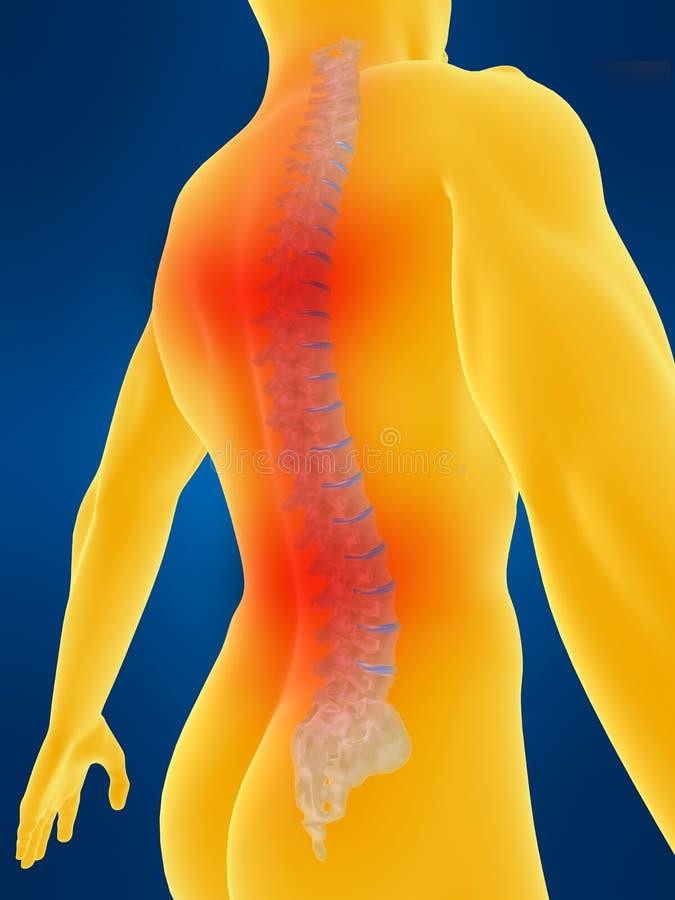 Espina dorsal humana con dolor de espalda ilustración del vector