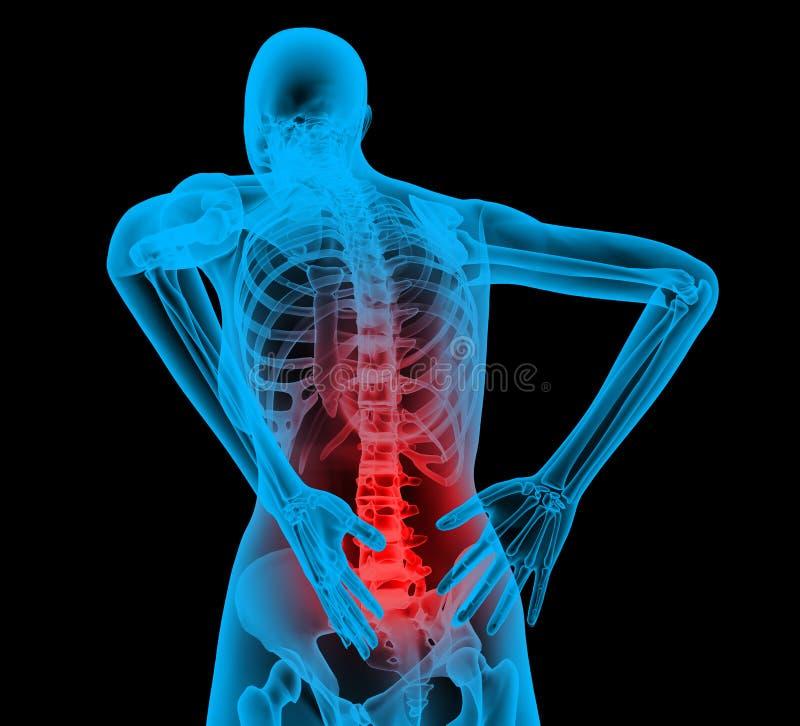 Espina dorsal humana en la opinión de la radiografía, dolor de espalda libre illustration