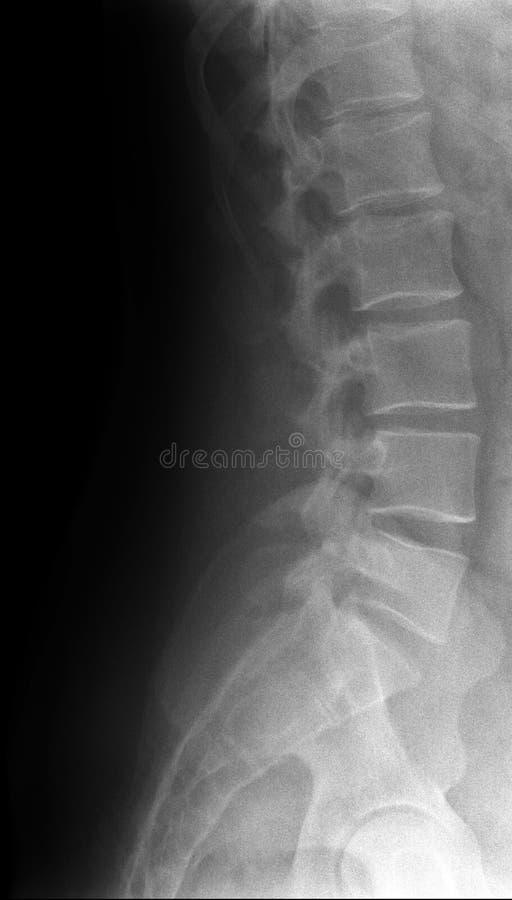 Espina dorsal lumbar foto de archivo libre de regalías