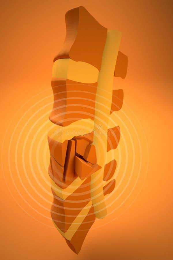 Espina dorsal, tuétano, fracturas traumáticas vertebrales libre illustration
