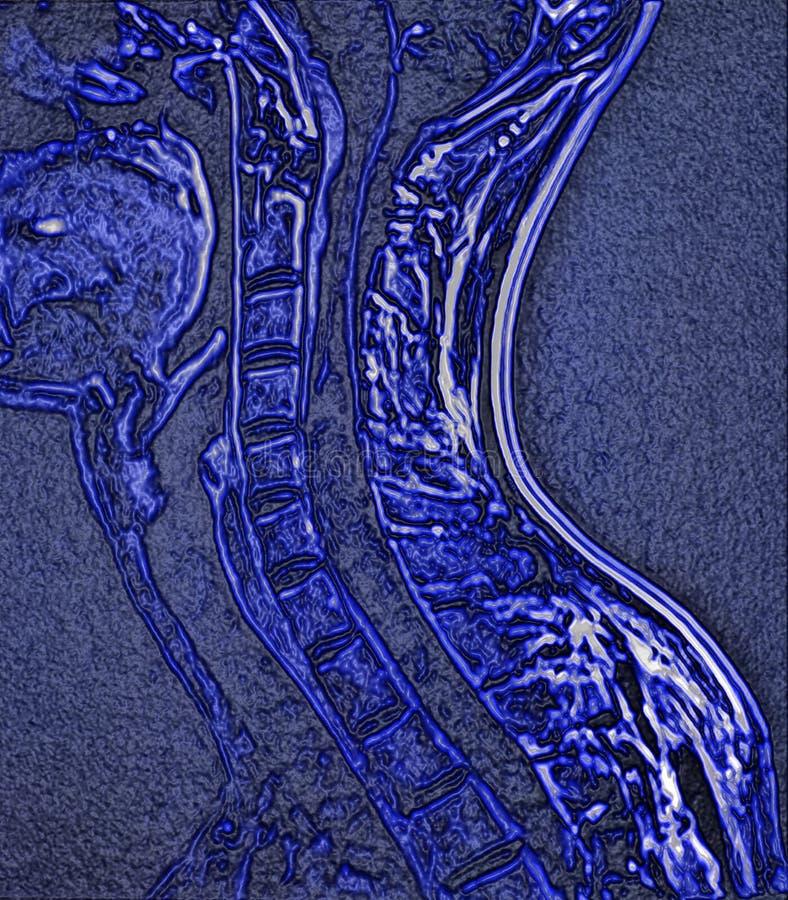 Espinha cervical, imagem de MRI imagens de stock royalty free