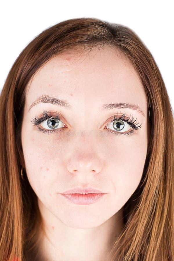 Espinha da cara da mulher imagem de stock royalty free