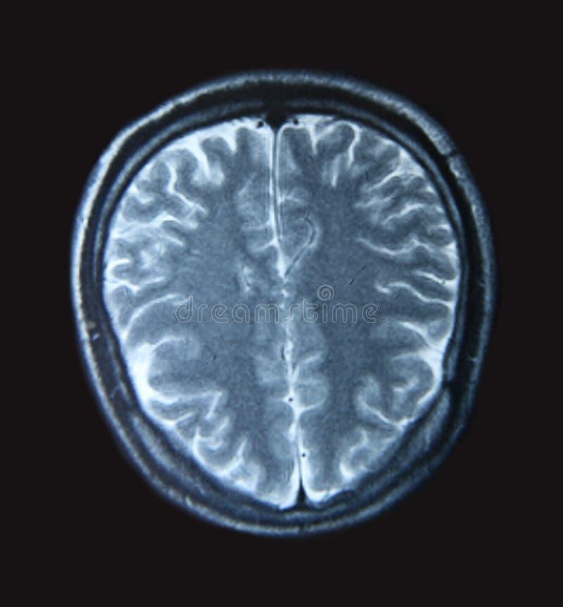 Esplorazione di MRI immagini stock