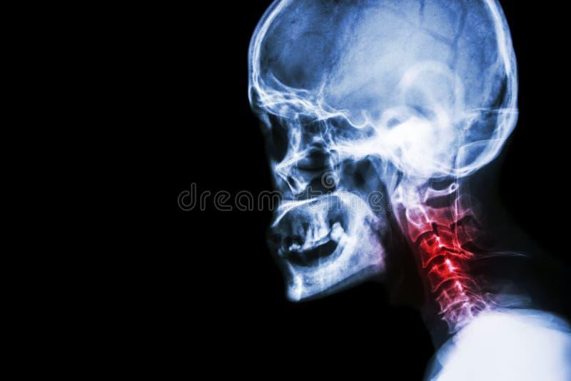 Espondilosis cervical filme la opinión del cráneo de la radiografía y el dolor de cuello laterales imagenes de archivo