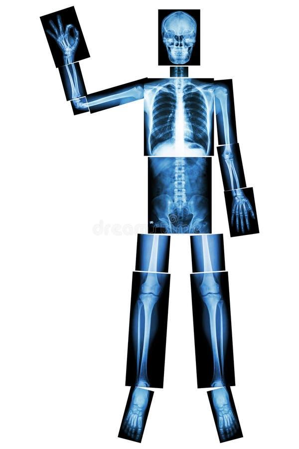 Esqueleto ACEPTABLE (aumento Humano Del Hueso La Mano Y La Muestra ...