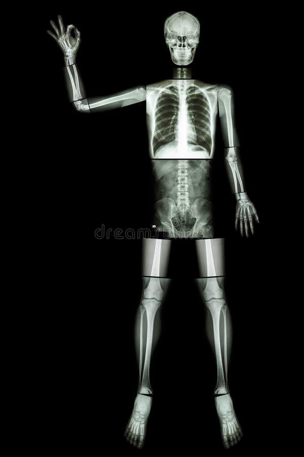 Esqueleto APROVADO (aumento humano do osso a mão e o sinal APROVADO) (corpo inteiro: tho principal do dedo da mão do pulso do ant imagens de stock