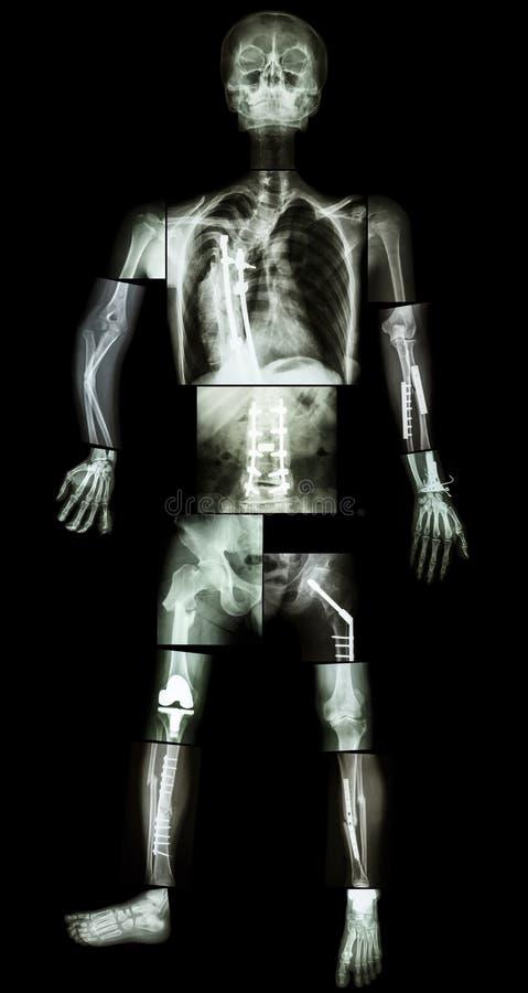 Esqueleto do ser humano imagens de stock royalty free