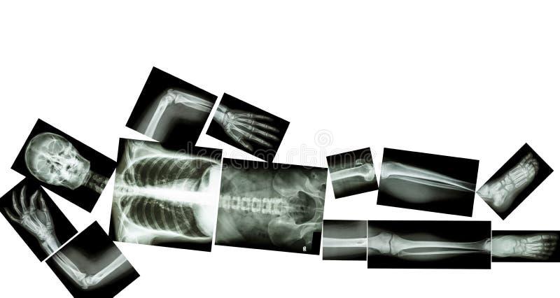Esqueleto do ser humano foto de stock