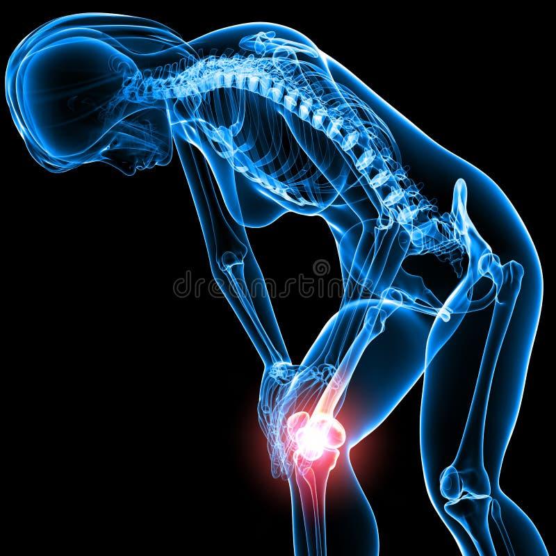 Esqueleto fêmea com dor do joelho ilustração stock