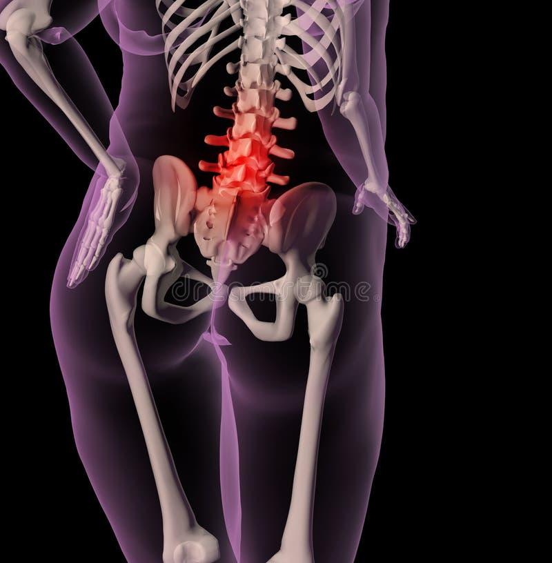 Esqueleto fêmea do excesso de peso com dor traseira ilustração stock