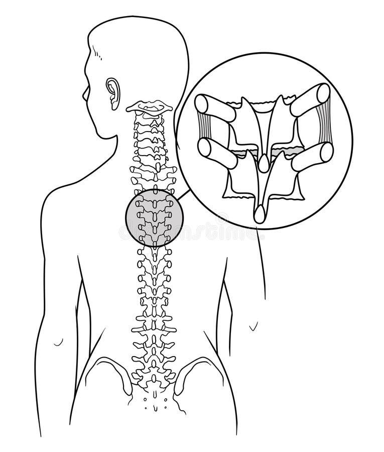 Esquema de Osteochondrosis Espina dorsal con los elementos de la osteoartritis libre illustration