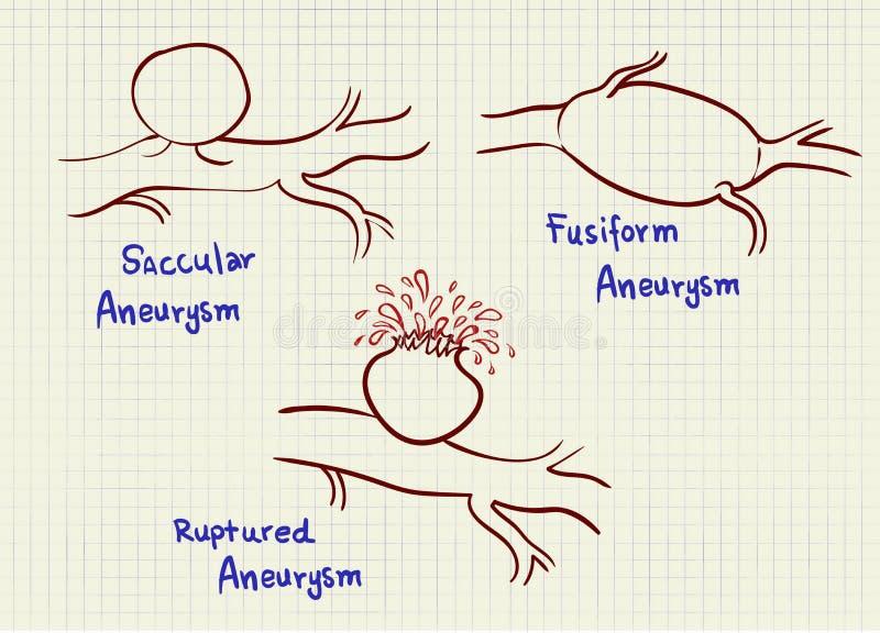 Esquema del gráfico del Aneurysm stock de ilustración