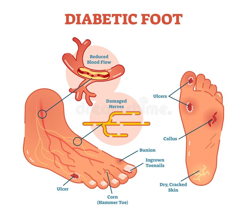 Esquema médico del ejemplo del vector del pie diabético ilustración del vector