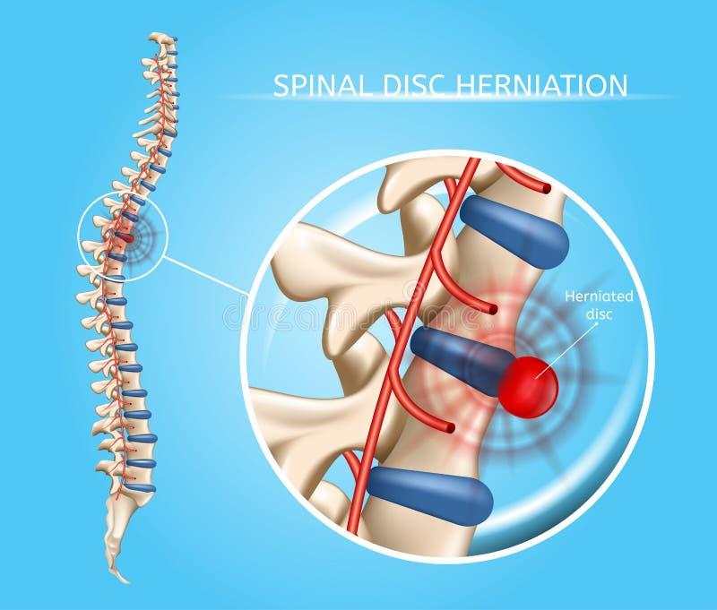 Esquema médico do vetor espinal de Herniation do disco ilustração royalty free