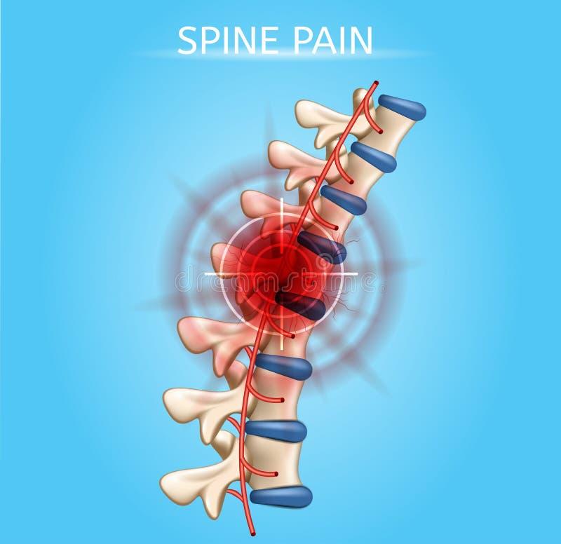 Esquema médico do vetor realístico humano da dor da espinha ilustração stock
