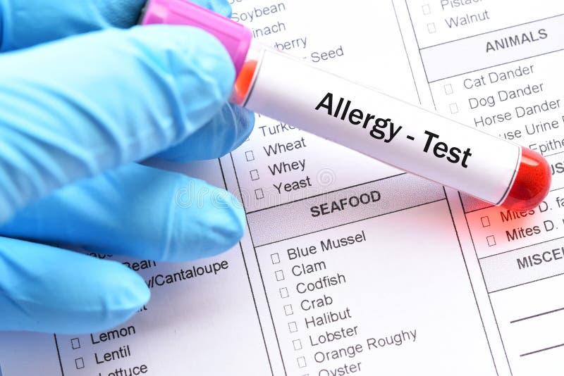 Essai d'allergie alimentaire photographie stock