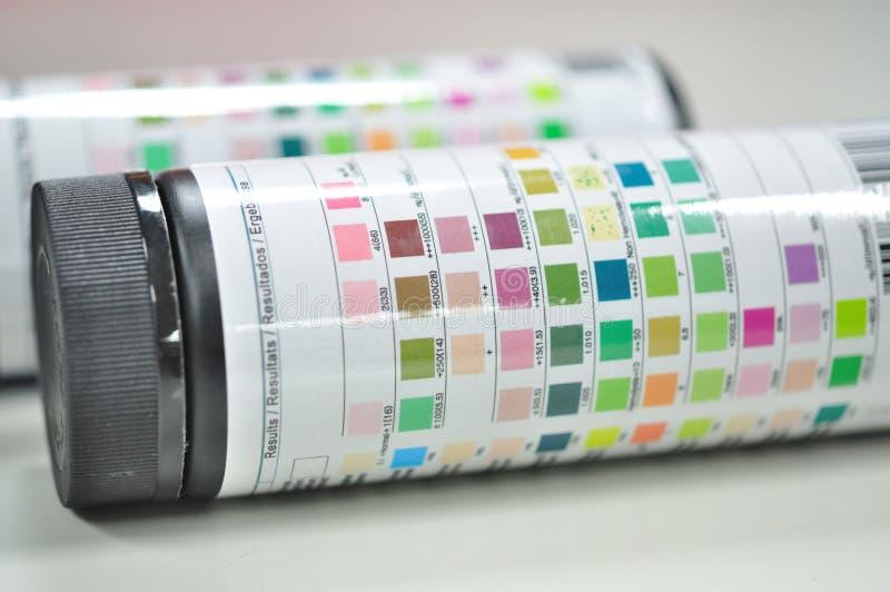 Essai de bande de papier d'urine images libres de droits