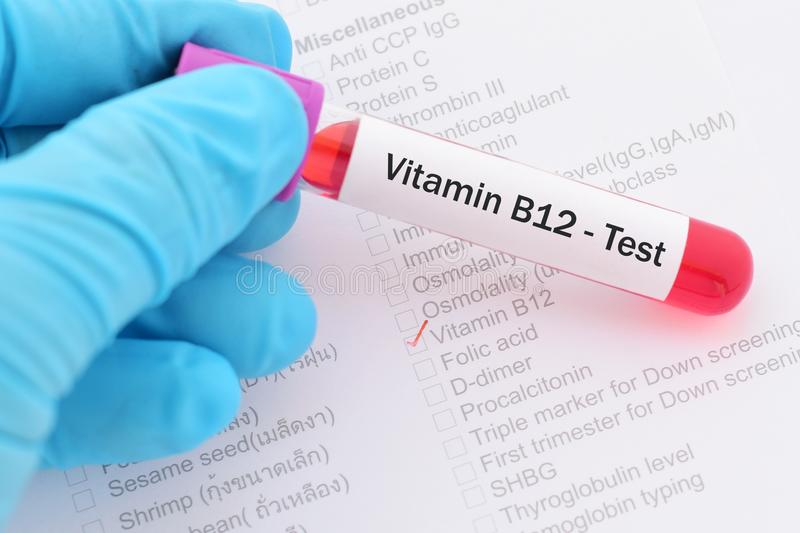 Essai de la vitamine B12 photo libre de droits