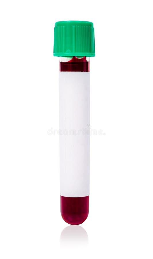Essai vert de tube de sang de vide avec le sang d'échantillon photo libre de droits