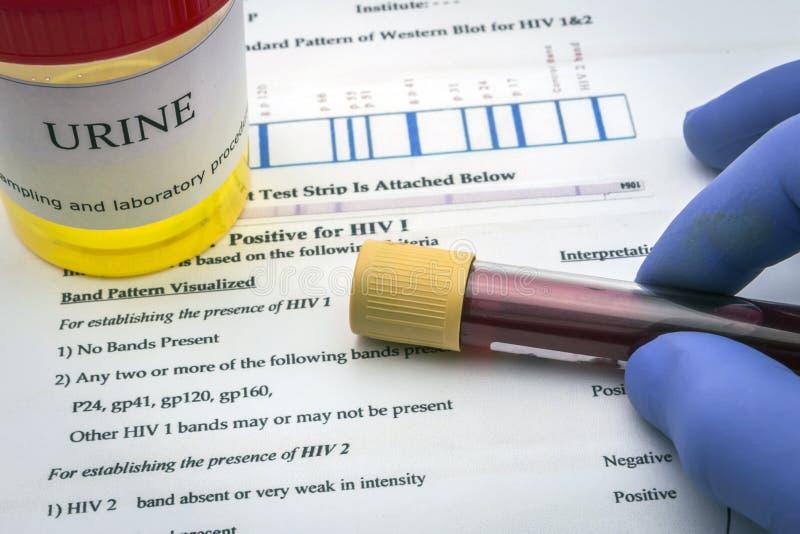 Essais pour la recherche de l'urine photo stock