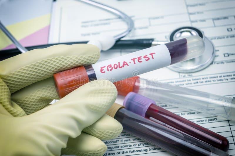 Essais pour la recherche du virus Ebola photographie stock