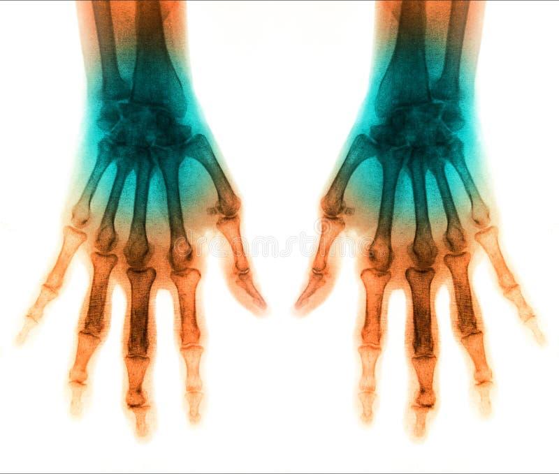 Essere umano di ricerca dei raggi x per la mano royalty illustrazione gratis