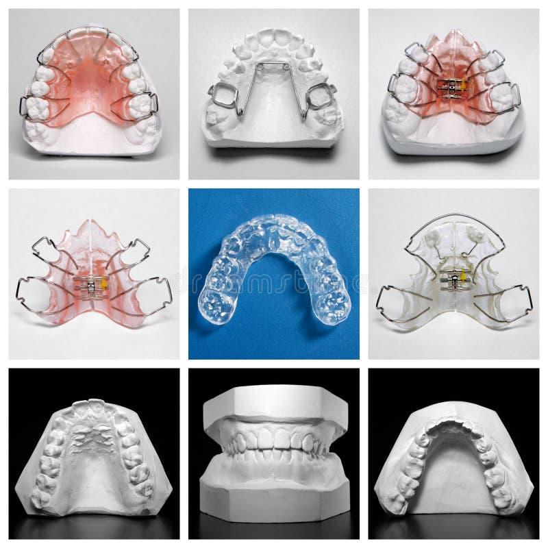 Essixpal die door orthodontische toestellen en studiemodellen wordt omringd royalty-vrije stock afbeeldingen