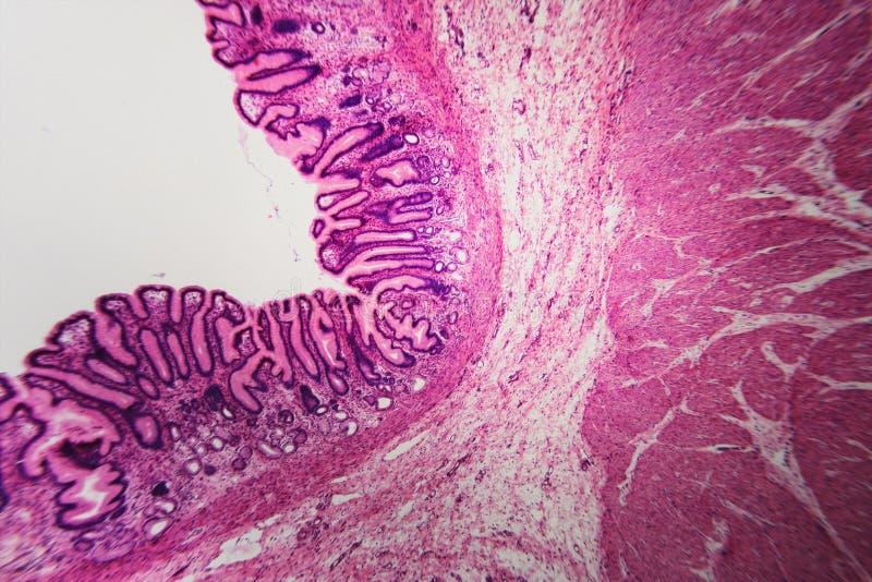 Estómago pilórico microscópico de la división de la célula foto de archivo libre de regalías