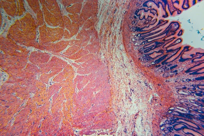 Estómago pilórico microscópico de la división de la célula fotos de archivo