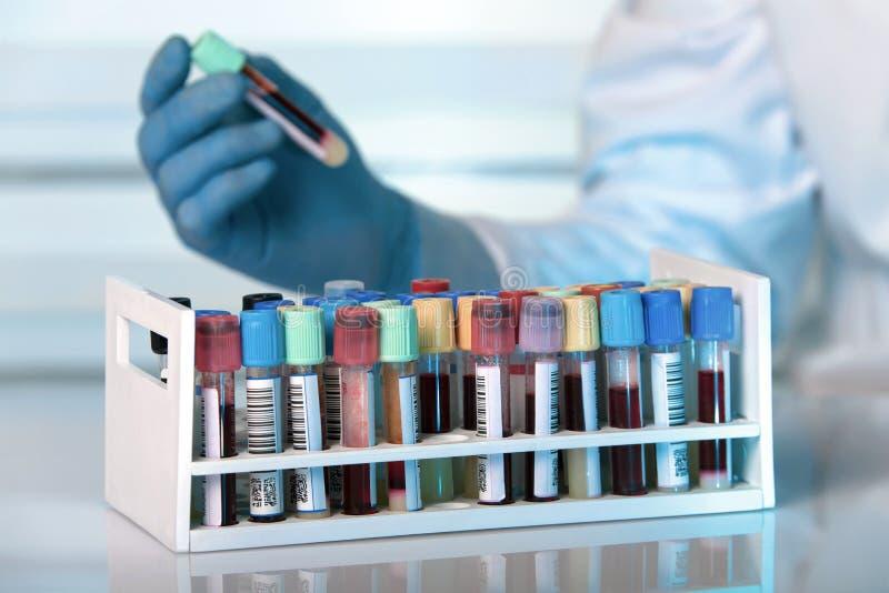 Estante con los tubos de ensayo de la sangre en laboratorio clínico fotos de archivo