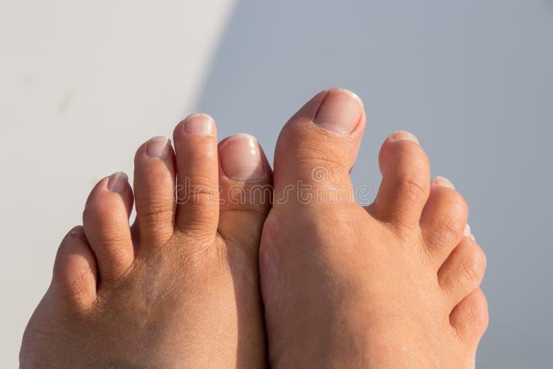 Estes dedos do pé precisam um pedicure foto de stock