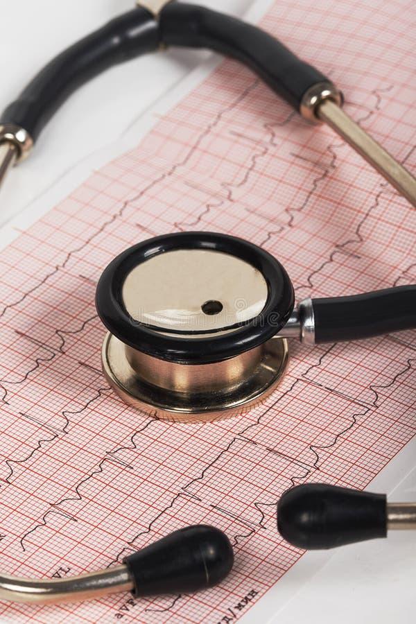 Estetoscopio con el cardiograma foto de archivo libre de regalías