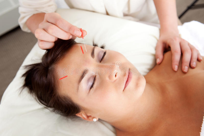 Estimulação facial da agulha do tratamento da acupunctura imagem de stock