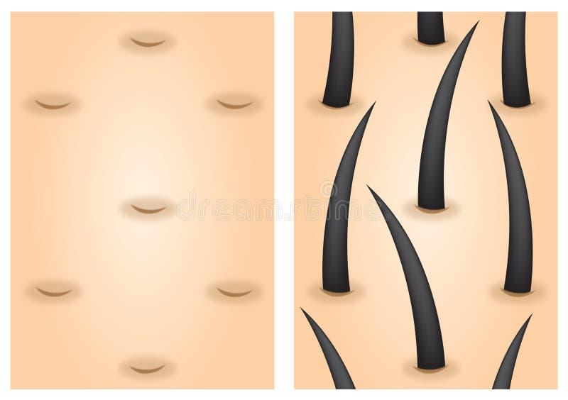 Estimulantes do crescimento do cabelo antes em seguida ilustração stock