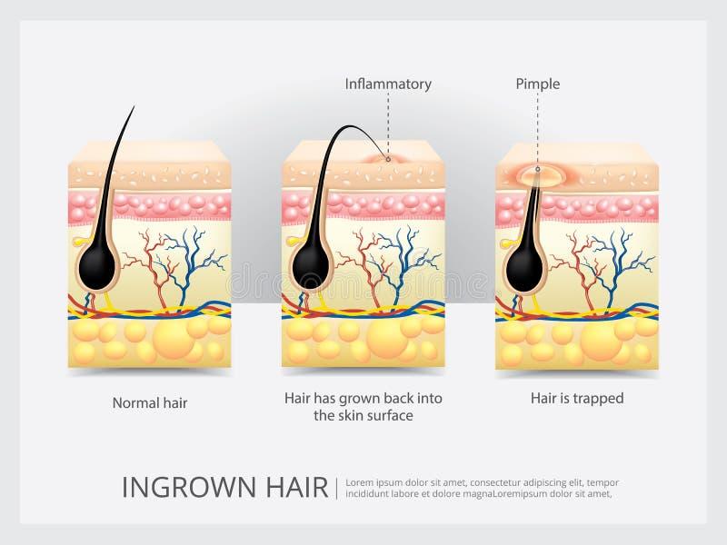 Estructura crecida hacia dentro del pelo ilustración del vector