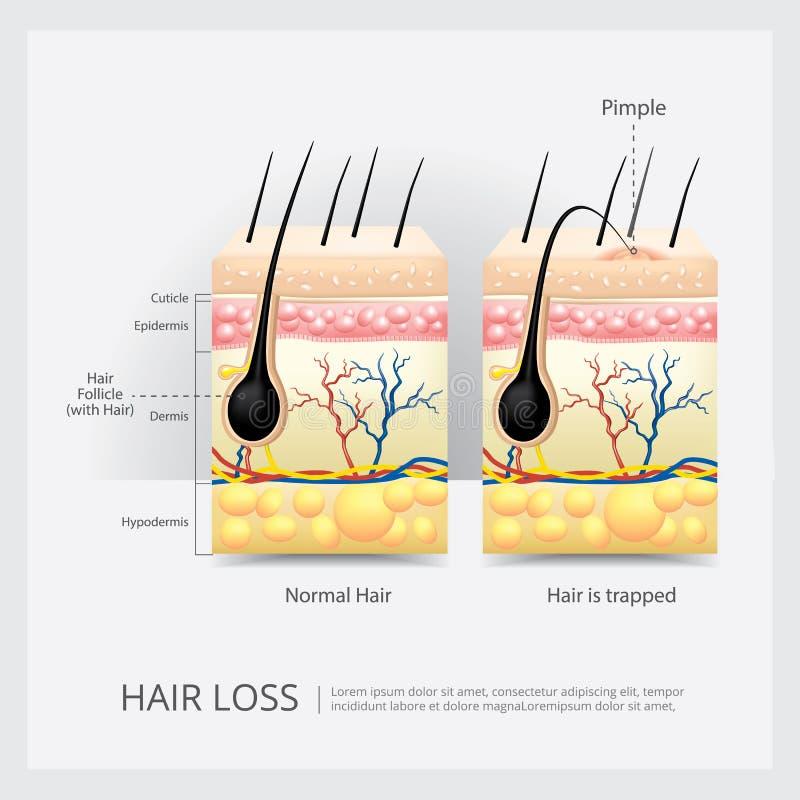 Estructura crecida hacia dentro del pelo stock de ilustración