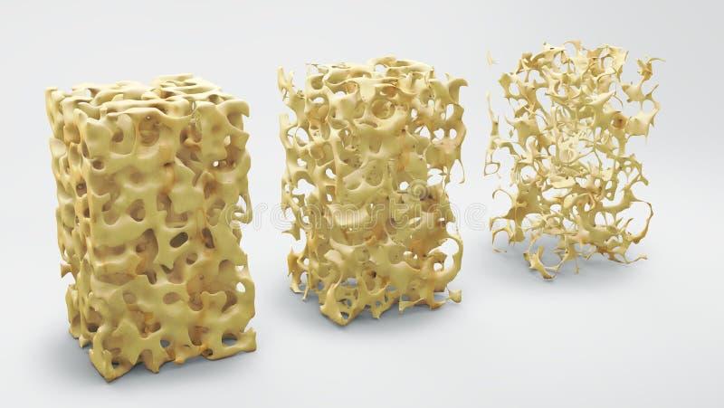 Estructura del hueso normal y con osteoporosis stock de ilustración