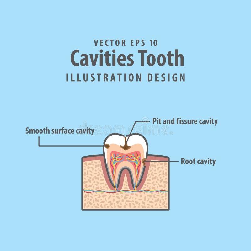 Estructura seccionada transversalmente del diente de Cavitys dentro del diagrama del diente ilustración del vector