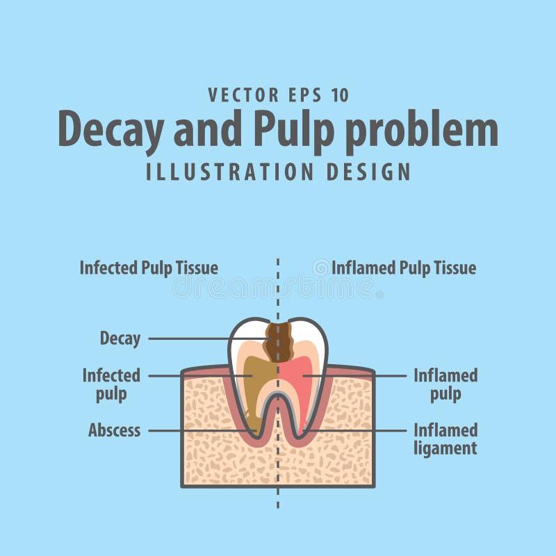 Estructura seccionada transversalmente del problema del decaimiento y de la pulpa dentro del diente ilustración del vector