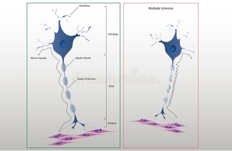 Estrutura do esquema de um neurônio típico ilustração stock
