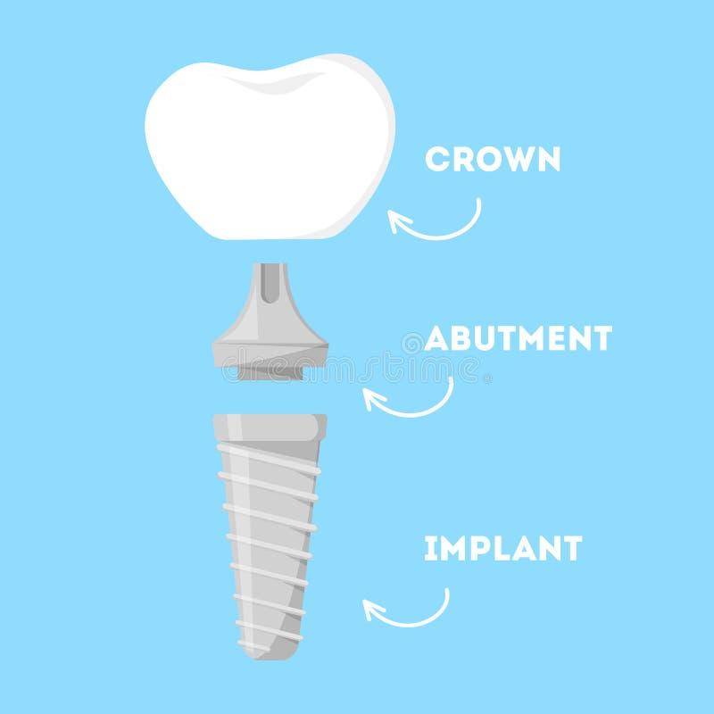 Estrutura do implante dental Peças do dente artificial ilustração do vetor