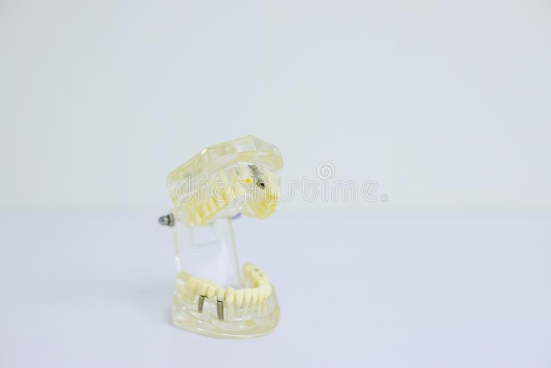 Estudiante dental de la odontología del diente que aprende el modelo de enseñanza que muestra los dientes, las raíces, las gomas, fotografía de archivo