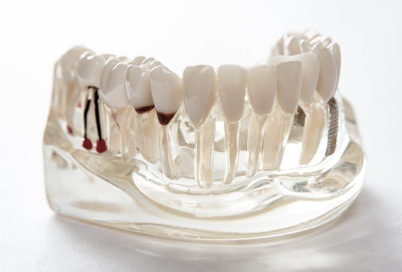 Estudiante dental de la odontolog?a del diente que aprende los dientes modelo de ense?anza de la demostraci?n fotos de archivo