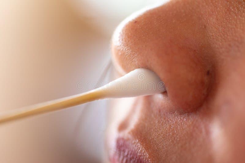 Estudo para o estafilococo das bactérias - áureo no nariz humano imagem de stock royalty free