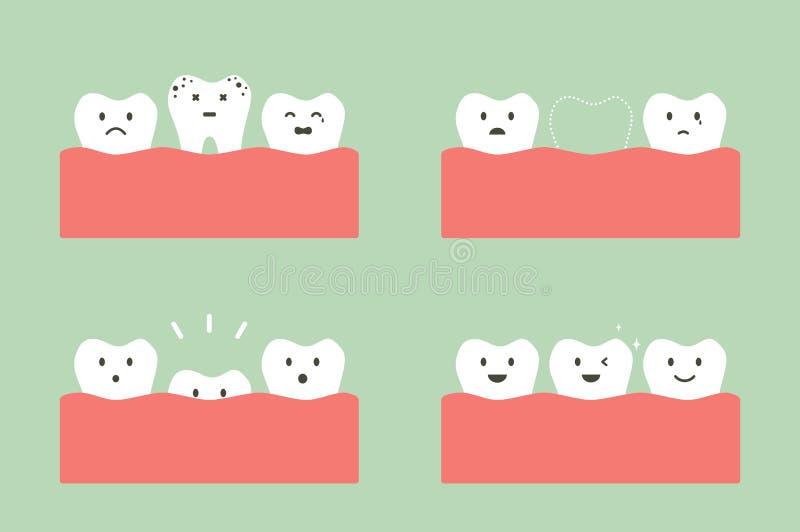 Etapa da cárie aos primeiros dentes ilustração do vetor